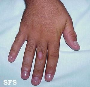 knuckle pads