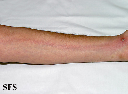 red streaks on legs
