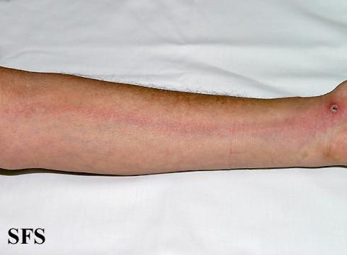 Elephantiasis (Elephantitis) Disease, Types, Pictures ...