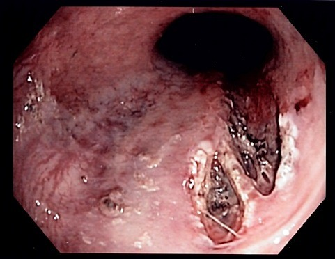 mallory-weiss tear (esophagus-stomach tear) | healthhype, Skeleton