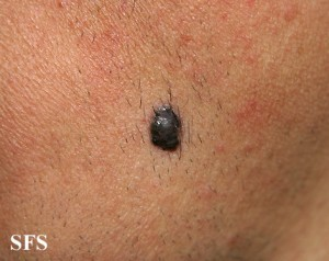 melanoma (black)
