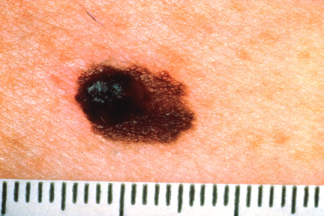 common warts on legs. and partly as a flat nevus