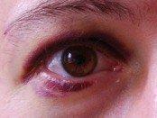 mild black eye