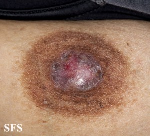 pagets disease of breast