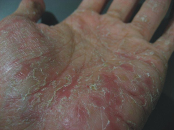 Peeling skin on palms - RightDiagnosis.com
