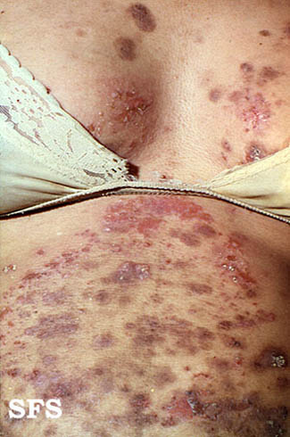 Cutaneous condition - Wikipedia