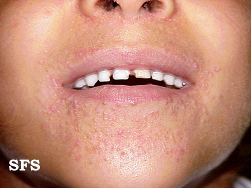 Mild Perioral Dermatitis Lips Pictures of perioral