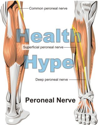 Peroneal Nerve Location, Injury, Causes of Pain and Palsy