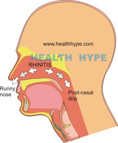 Mucus draining down throat