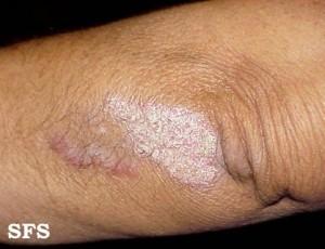 psoriasis rash