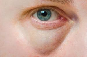 Puffy eye