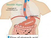 reflux laryngitis