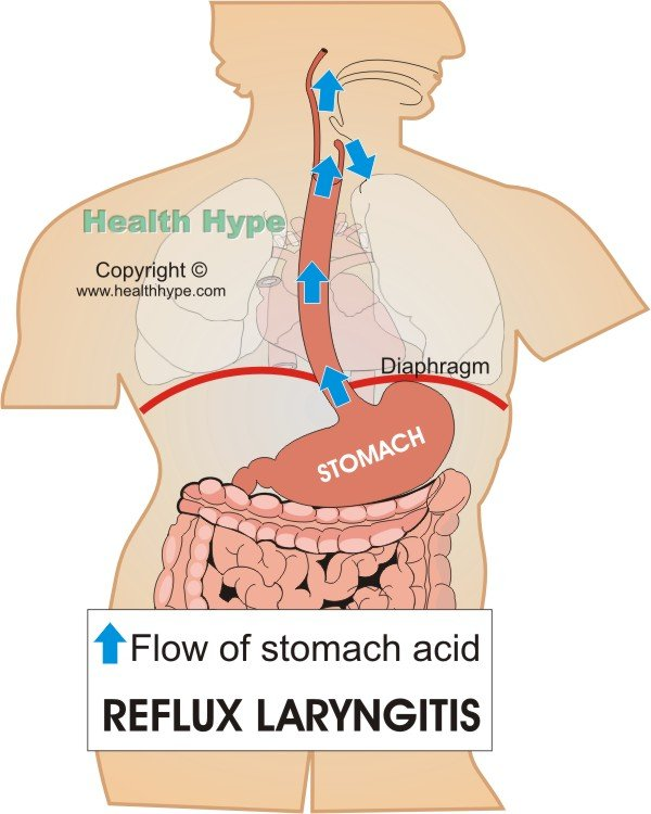 Reflux Laryngitis (Voice Box Larynx Acid Irritation)