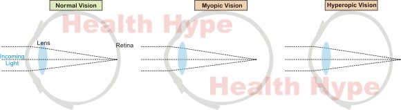 10 Possible Causes of Blurred Vision (Sudden or Gradual)
