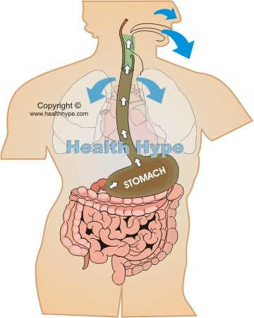clear fluid and mucus vomiting | healthhype, Skeleton