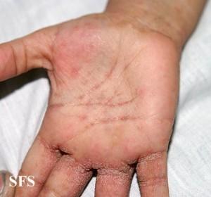 scabies palms