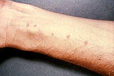 schistosomiasis skin rash