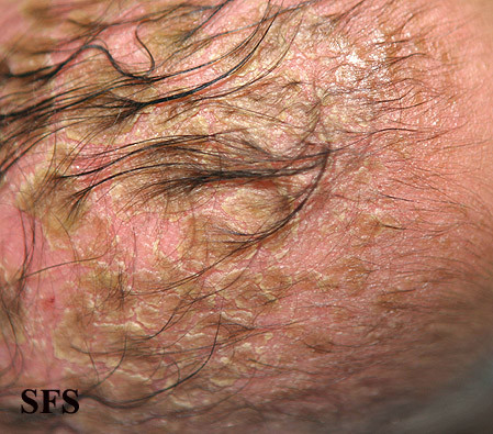 Psoriasis-excessive flaking, Seborrheic dermatitis-inflamed skin condition 2