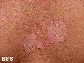 Seborrheic dermatitis rash