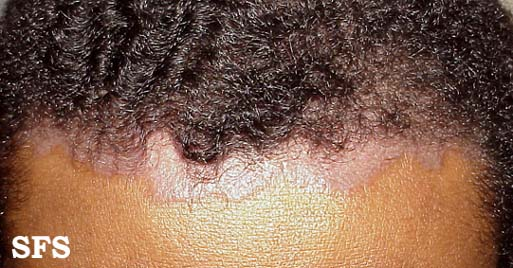The bottom line is- Hair fall is not permanent in psoriasis 2