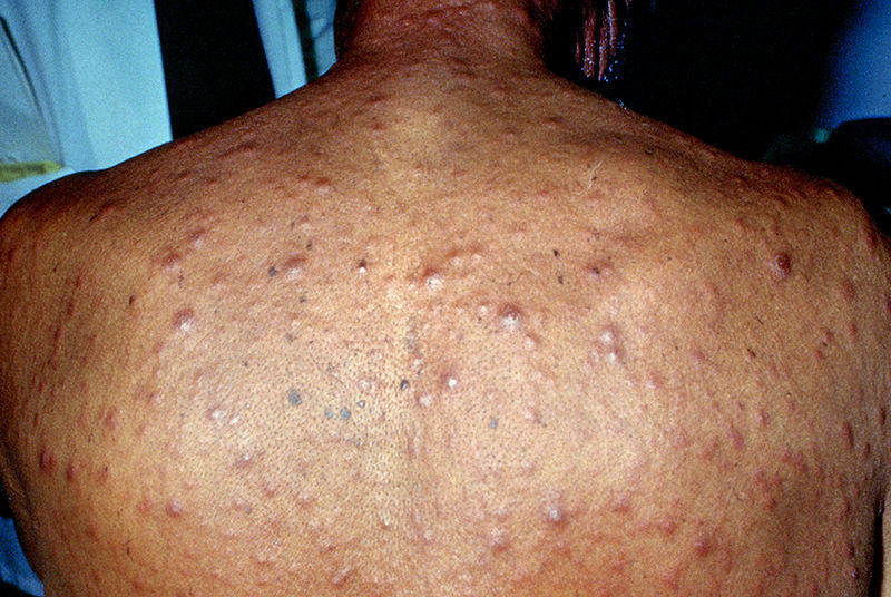 hiv skin infections, rash and sores with pictures | healthhype, Skeleton