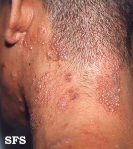 shingles neck and scalp