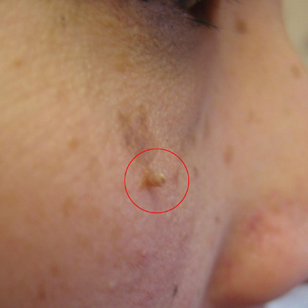 What is a Skin Tag? Causes, Location and Pictures