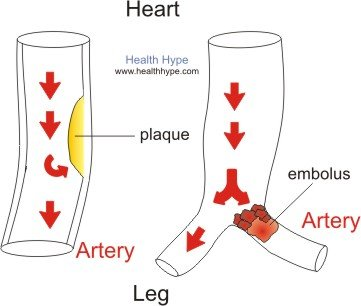 slow blood flow, sluggish circulation in the legs (diagram, Muscles