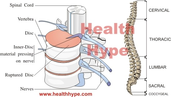 Nerve Roots Exiting Spinal Cord Spinal Nerve Roots