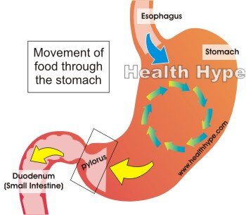 Clogged Stomach - Unclogging The Putrid Impaction