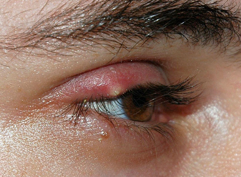 Eye Mucus (Excessive & Crusty) – Causes and Symptoms | Healthhype.com