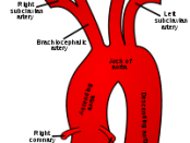 subclavian artery