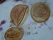 tapeworm eggs
