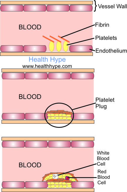 what is a thrombus? thrombosis causes in artery and vein, Human Body