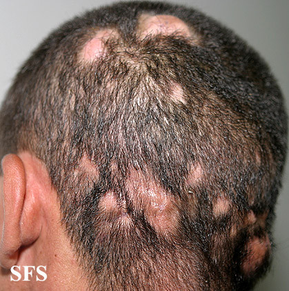 Picture 4. Scalp ringworm (Tinea capitis) Black dots are from broken ...