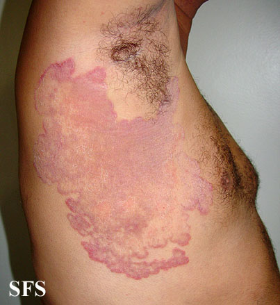 tinea corporis (ringworm of the body) information and pictures, Skeleton