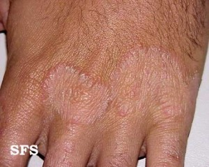 Tinea manuum back of hands