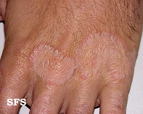 Tinea Manuum (Hand Fungus) Causes, Symptoms, Pictures, Treatment