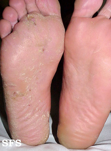 Tinea pedis - athletes foot