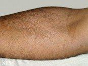 tinea versicolor elbow
