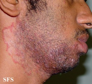 Tinea Barbae Beard Fungus Causes Pictures Treatment