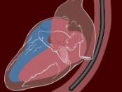 transesophageal ECG