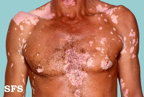 vitiligo white patchy skin disease causes symptoms