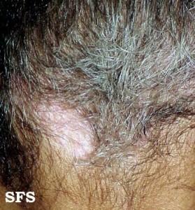 vitiligo scalp
