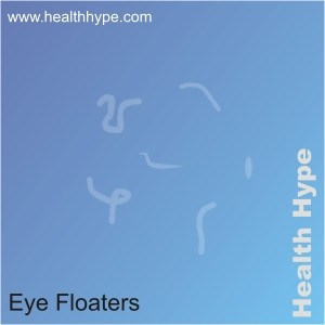eye spots floaters | decorativestyle.org