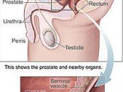 Prostate Gland Diagram