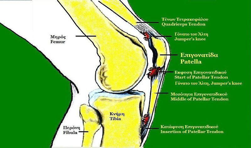 Knee Cap Pain Healthhype