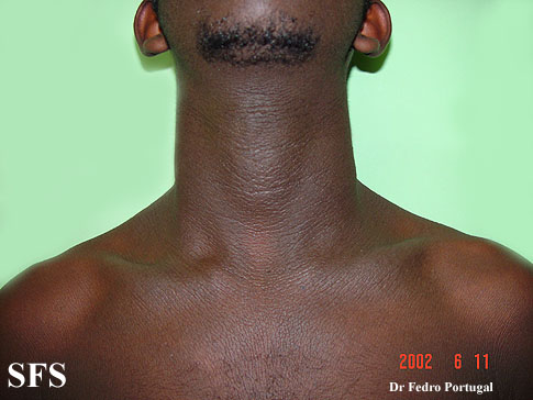 Acanthosis_nigricans-neck