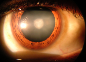 Cataract in human eye