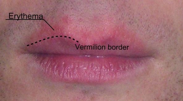 lip diseases
